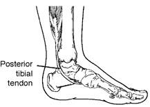 Diagram of posterior tibial tendon - Podiatry Illawarra